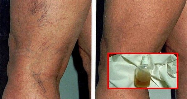 successfully-treat-capillaries-and-veins-with-these-4-herbal-recipes