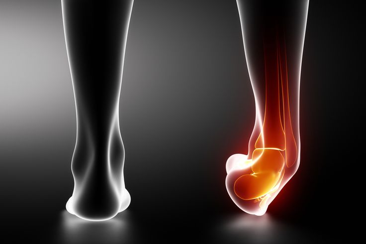 How to treat an ankle sprain - best steps to take for a quicker, more complete recovery! From Fit Stop Physical Therapy