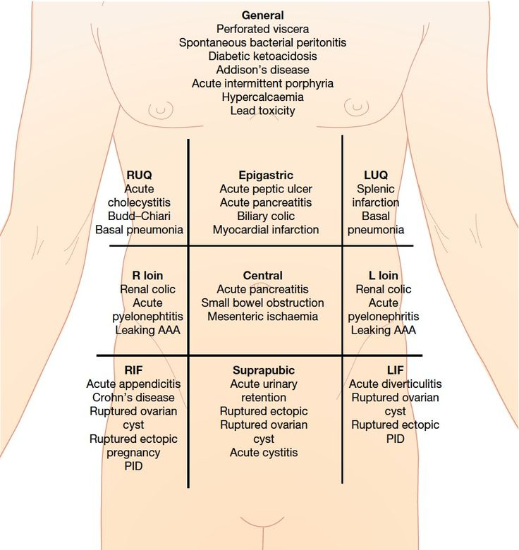 Acute abdominal pain and starting DDX by quadrant