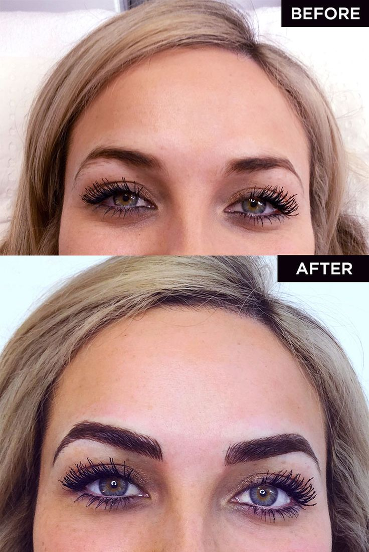 Before And After Diy Kitchen Renovation: Image Result For Microblading Before And After