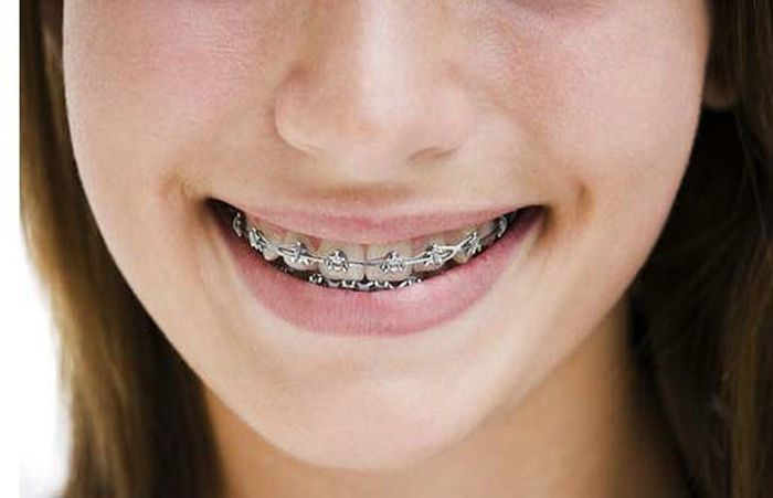 Clear Braces Cost For Girls