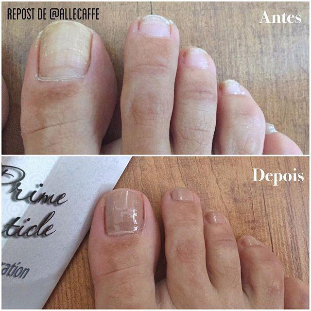 """Hoje o depoimento é de quem tem pés de bailarina! @allecaffe muito feliz em saber que esteja gostando da Prime! Precisamos ter fotos e depoimentão dos maridos tb!  --- """"Não é milagre. Não tem alicate nem lixas. Só tratamento! PrimeCuticle Restauration te amo! Passei na unha toda e na pele, massageei e esmaltei, nem esmalte para limpar"""" ❤❤❤❤ #PrimeCuticle"""""""