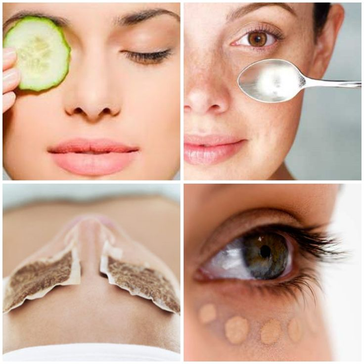 As the skin around your eyes thins with age, you need to take more care of it. And here is how: º drink at least 8 big glasses of water a day. Water is youth and freshness, we all know that. º consume fruits and vegetables and even meat that contains vitamin K, as it ...