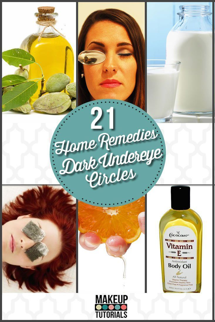 Looking for home remedies for dark circles under your eyes? Want to know any natural remedies for dark circles under eyes? Check out this 21 home remedies!