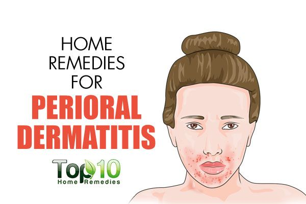 Perioral dermatitis, also known as periorificial dermatitis, is a type of inflammatory rash that appears on the facial skin around the mouth. The exact cause of this form of dermatitis is not known. However, experts believe that it may appear after topical steroid creams are applied to the face to treat other conditions. Moreover, nasal …