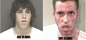 DROGA FUNESTA DETONA USUÁRIOS   - Faces da metanfetamina: antes e depois