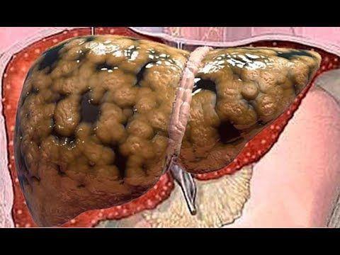 Medico japonés muestra como eliminar toda la grasa del hígado en pocos d...