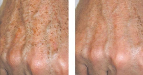 Video – How To Remove Brown Spots Off The Hands As we grow old, certain changes appear on our skin.  Age spots are one of the problems that growing old brings. Age spots are also known as liver spots and usually they are flat, brown or dark appearance on the skin. Fortunately there is a