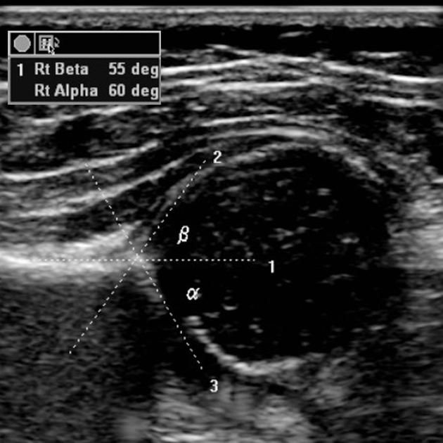 38 Best Ultrasound Images On Pinterest Ultrasound Radiology And
