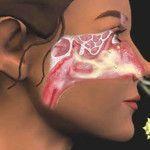 Remédio caseiro para alergia respiratória