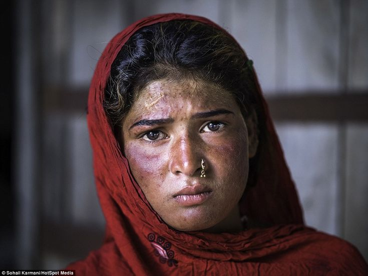 A young girl in the Sahiwal slum where the extreme climate ranges from 45 degrees Celsius in the summer to 2 degrees Celsius in winter