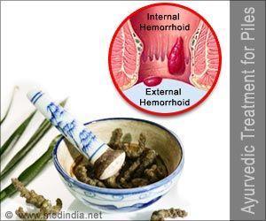 Ayurvedic Treatment for Piles | Hemorrhoids | Medindia