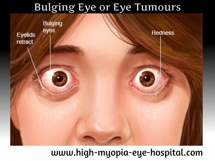 For More Details visit us on www.high-myopia-eye-hospital.com Email : saraswathieyehospital@gmail.com