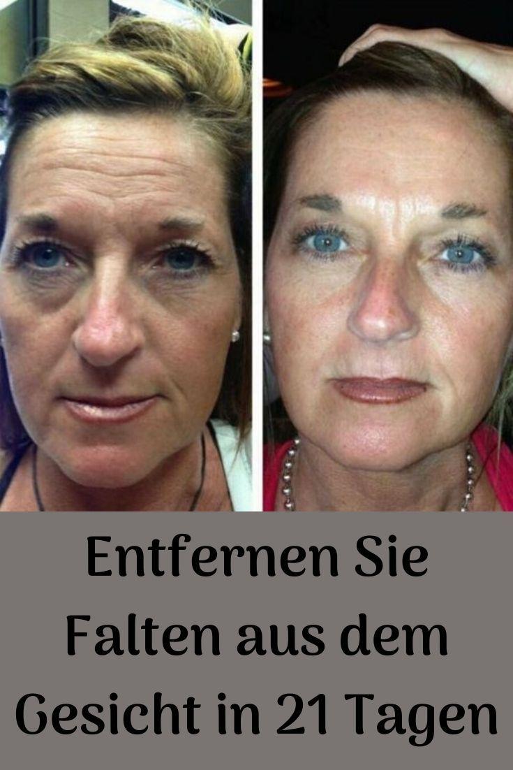 Entfernen Sie Falten Aus Dem Gesicht In 21 Tagen Gesicht Haare Pflegen Ratgeber Gesundheit