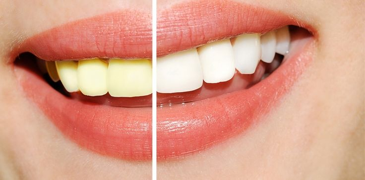 http://radiantsmileathome.com/wp-content/uploads/2016/08/teeth-whitening-review.jpg