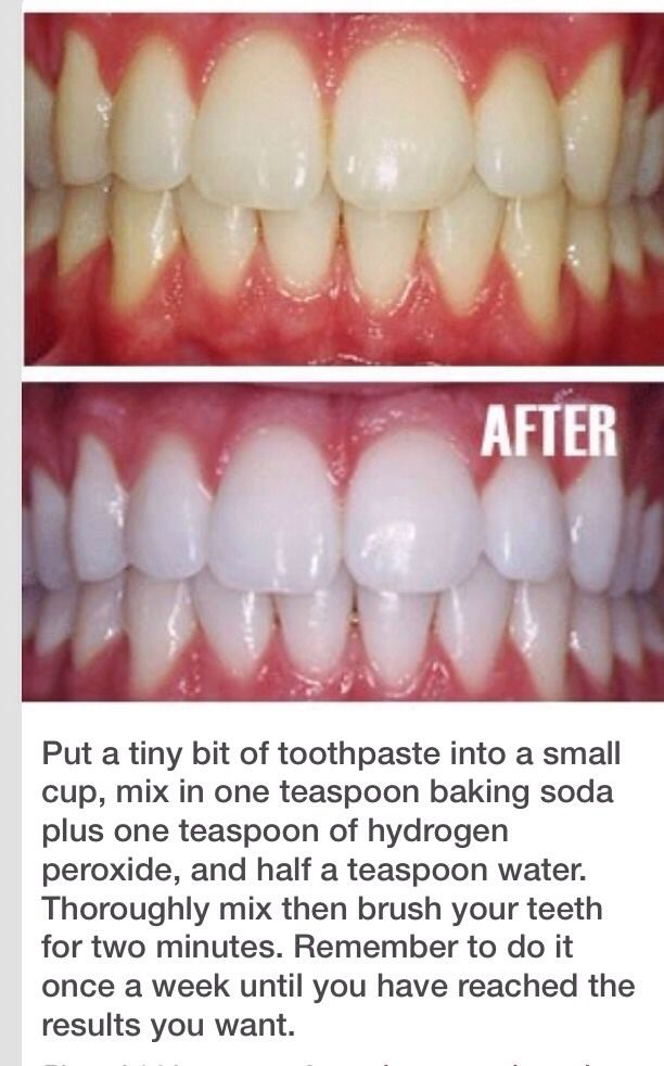 Natural Way To Whiten Teeth