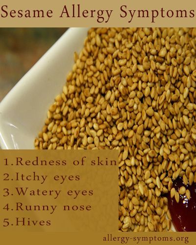 Sesame allergy is basically due to sesame seeds and sesame oil which are used in preparing most of the dishes especially in Asian and Arab countries. This seed comes in two varieties one is milky white in colour and another one is black in colour. Although sesame allergy is not so common but it's on a rise. http://allergy-symptoms.org/sesame-allergy-symptoms/