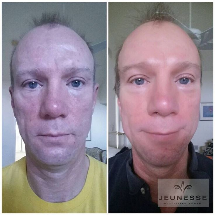 Look 10 year younger with our Luminesce skin line! Just Amazing results in just a couple of week!!