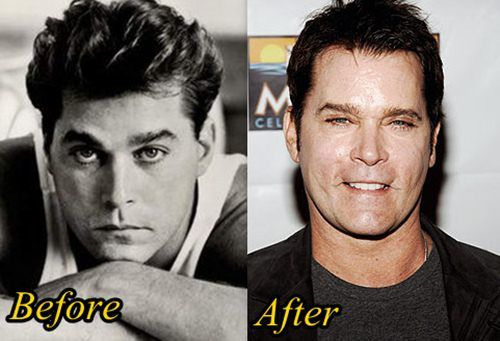 Ray Liotta Plastic Surgery Before And After Plastic