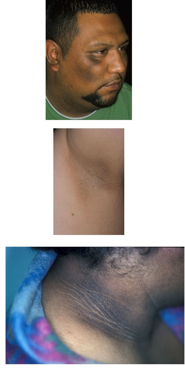 ACANTHOSIS NIGRICANS is a brown to black, poorly defined, velvety hyperpigmentation of the skin. It is usually found in body folds, such as the posterior and lateral folds of the neck, the axilla, groin, umbilicus, forehead, and other areas. The most common cause of acanthosis nigricans is insulin resistance, which leads to increased circulating insulin levels. It is also a prominent feature of obesity| Read more here  http://en.wikipedia.org/wiki/Acanthosis_nigricans