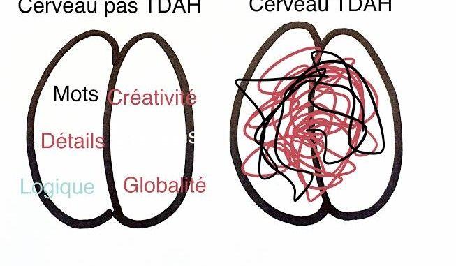 Le Cerveau TDAH