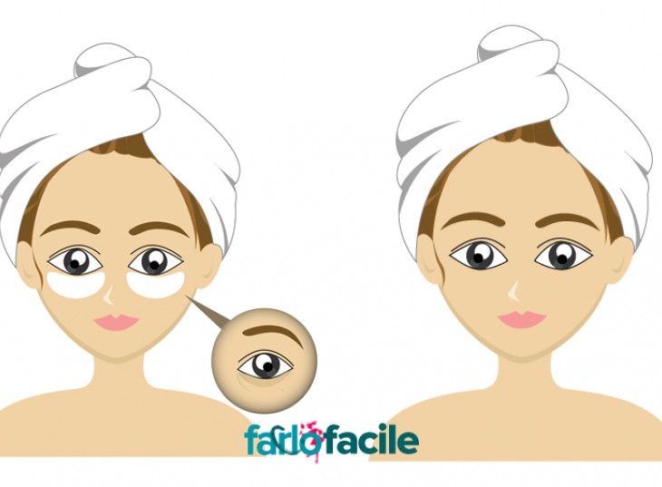 Che il bicarbonato sia un ingrediente dai mille utilizzi lo sappiamo tutti. Ottimo per preparare maschere di bellezza, pulire la casa e per idratare la pelle. E, perché no, per eliminare le occhiaie: quegli antiestetici cerchi scuri sotto gli occhi che ci danno un'aria così stanca e trasandata. P...