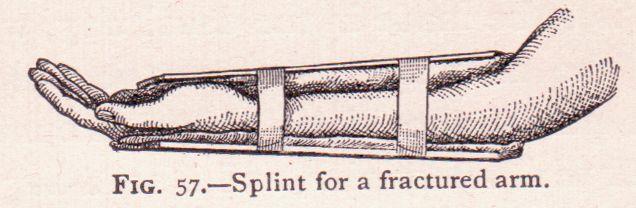 splint for fractured arm 1910