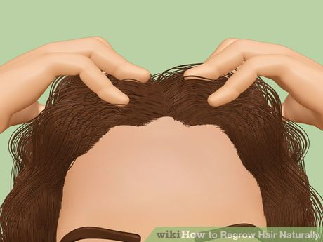 Image titled Regrow Hair Naturally Step 1