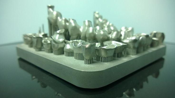 Una base de trabajo llena de restauraciones de cobalto cromo hipoalergénico