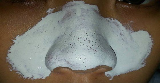 Get Rid of Blackheads- Effective Mask With Only Two Ingredients!