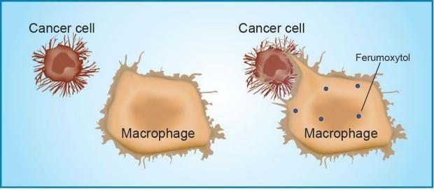 Iron nanoparticles make immune cells attack cancer | Health & Medical News | HealAlerts.com