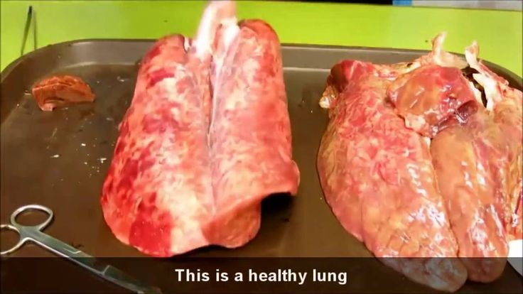 This is What Happens to Your Lungs If You Don't Quit Smoking  https://www.youtube.com/watch?v=ZybAbwjNp_Q