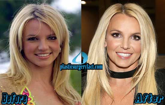 britney spears plastic surgery before and after. Black Bedroom Furniture Sets. Home Design Ideas