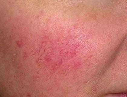 Купероз (сосудистая сетка) на лице. Причины, лечение, питание