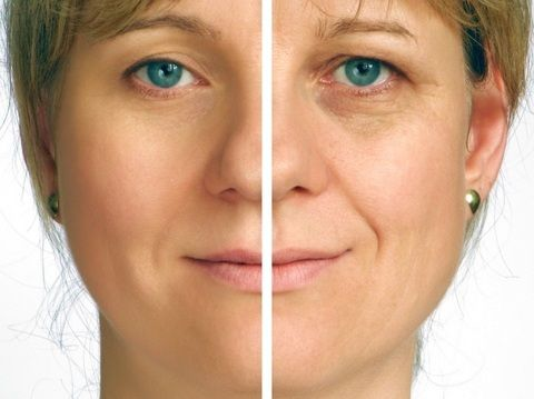 By using DMAE Cream on your skin, you will almost immediately see a change in your skin and an increase in your skin's radiance.It will take around 35 days to get the best results.Recently on the Dr Oz program he showed a before and after picture of a woman who used DMAE Face Cream, and the results were really impressive – even better than some plastic surgery treatments for aging that I have seen!