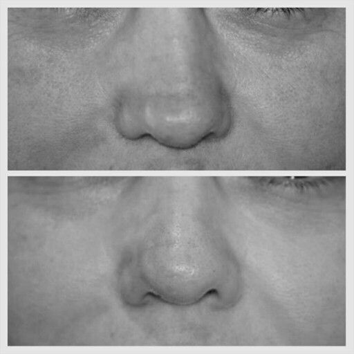 It's been an impressive influx of corrective cases after surgical rhinoplasties lately, here's another overresected tip of the nose that appeared crooked. Restylane was used to fix the asymmetry and pull the tip back to the midline. #boston #rhinoplasty #nosejob #alternative #injection #expert #newton #asymmetry #correction #reconstruction #hiv #lips #eyes #beauty #taste #youth #young #proportion #selfesteem #juvederm #belotero #merz #galderma #allergan #botox #sculptra #chin #augmentation…