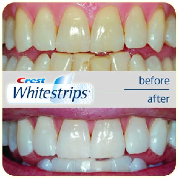 crest whitestrips before after