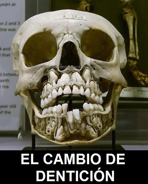 .... Y Así es el Cambio de DENTICIÓN !! ... Muy Buena Imagen para Compartir Odontólogo !!