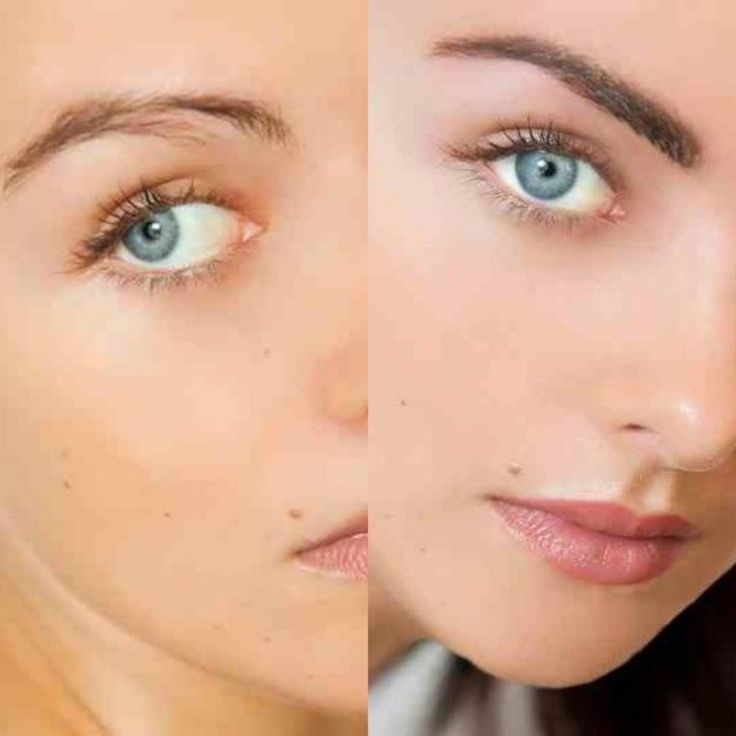 14 Ways Tattoo Removal Before And After Face Can Improve ...