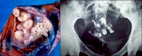 Teratoma: A germ cell tumor with tissue resembling normal organs. Pictured is an ovarian teratoma with teeth.