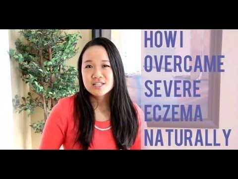 How I Overcame Severe Eczema When Doctors Said There Was No Cure   Prime Physique Nutrition