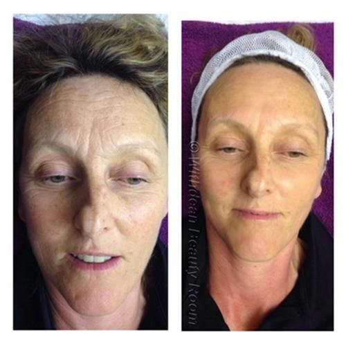 55 best microdermabrasion images on pinterest skin treatments before and after skinbase microdermabrasion get clearer more even skin tone solutioingenieria Images