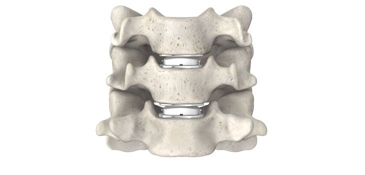 LDR Announces Presentations of Mobi-C(R) Cervical Disc Five-Year Clinical Results at the North American Spine Society Annual Meeting (NASS) - http://www.orthospinenews.com/ldr-announces-presentations-of-mobi-cr-cervical-disc-five-year-clinical-results-at-the-north-american-spine-society-annual-meeting-nass