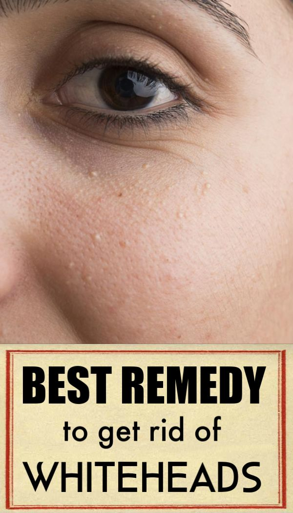 Best trick to get rid of Whiteheads and pimples with less or no pain and skin damage