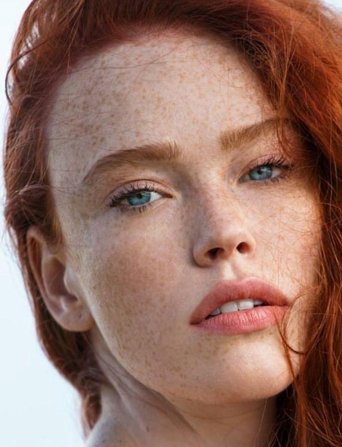 Freckledred