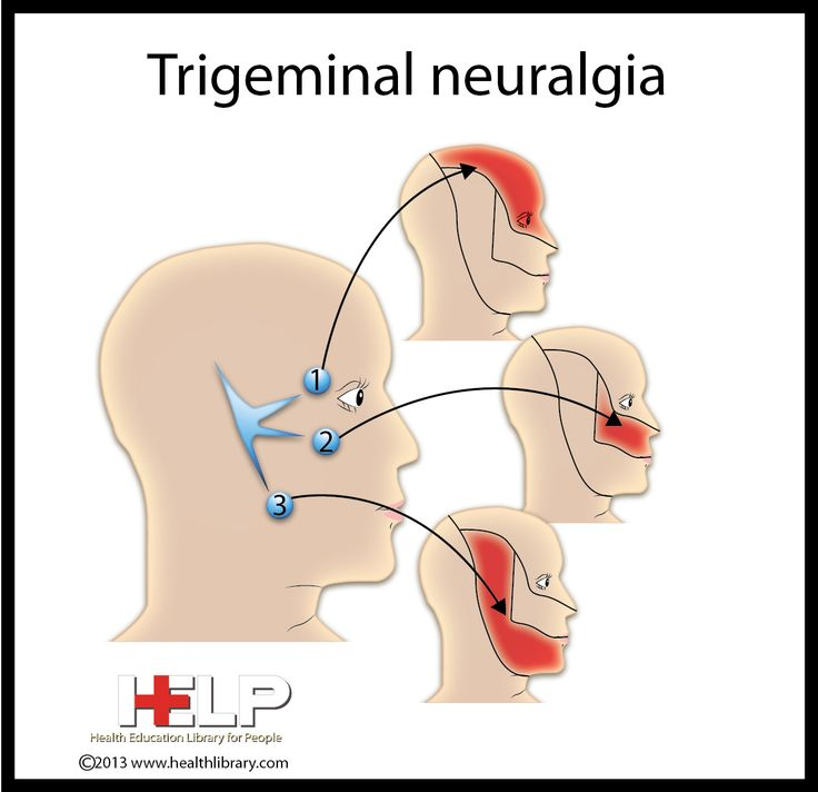 45 Best Images About Atypical Trigeminal Neuralgia On