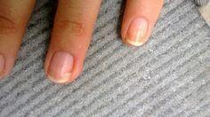 réparer ongle cassé