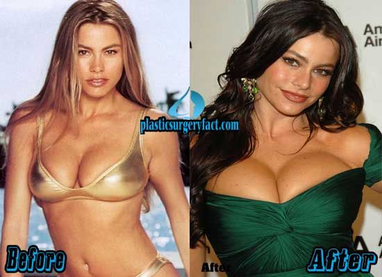 Sofia Vergara Breast Implants Before And After Http