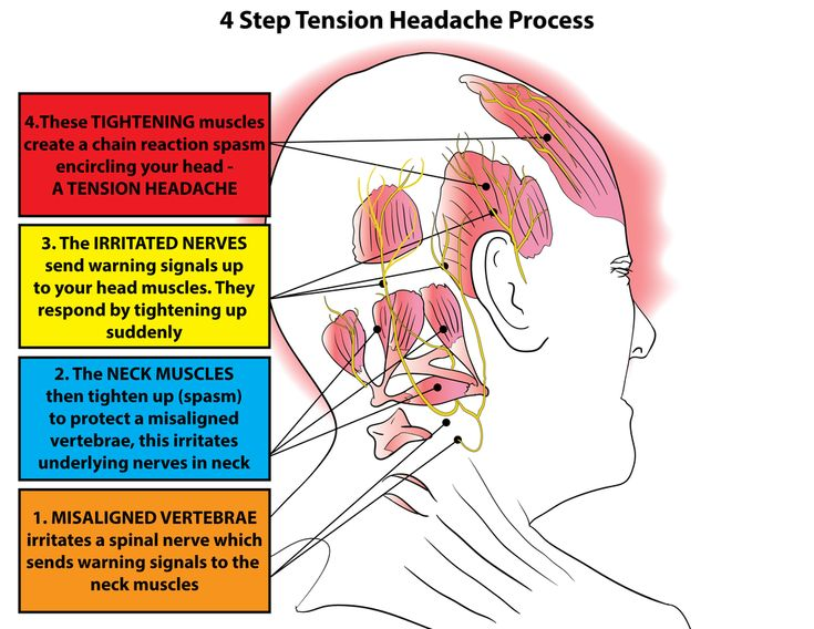 Tension headaches usually affect both sides of the head and last from thirty minutes to several days or more. TTH are by far the most common type of chronic h