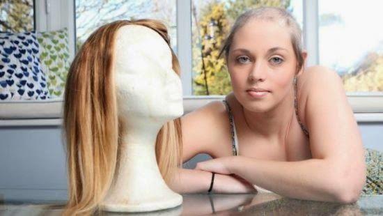 TRICOTILOMANIA: Garota com condição de estresse rara fica careca de tanto puxar os próprios cabelos   EpHuman